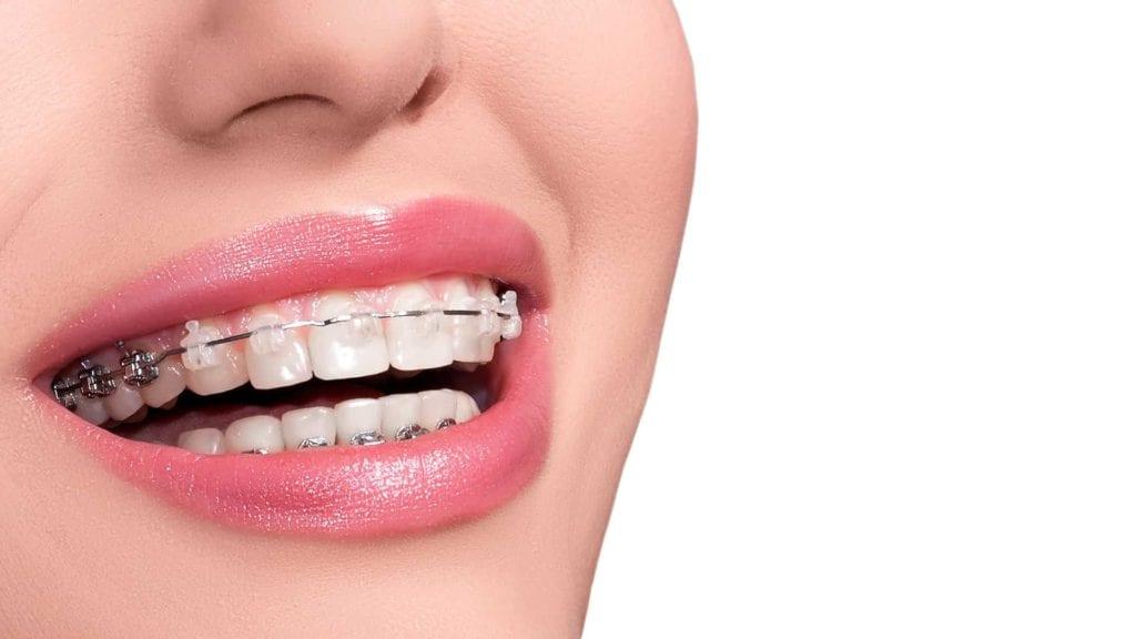 fatima dental clinic junagadh